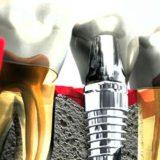 Имплантация зубов - Что? Где? Когда?