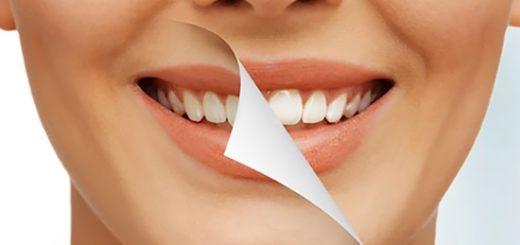 как отбелить зубы самому
