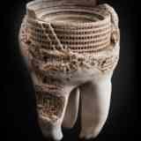 Почему от сладкого болят поврежденные зубы